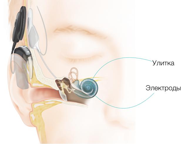 какой кохлеарный имплант выбрать — особенности Cochlear